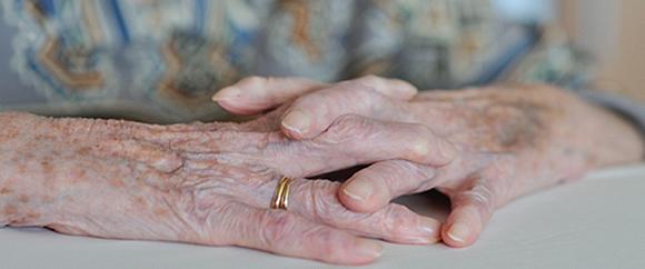 Dieses Bild zeigt die Hände einer älteren, unter Rheuma leidenden Person.